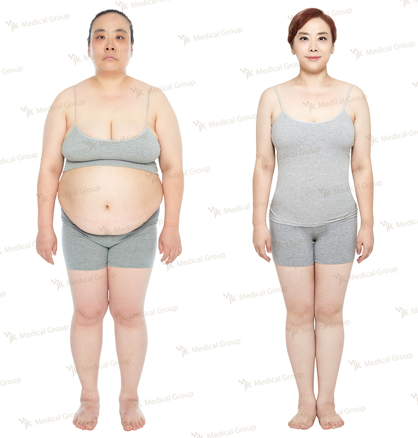 3D Liposuction, Breast Reduction